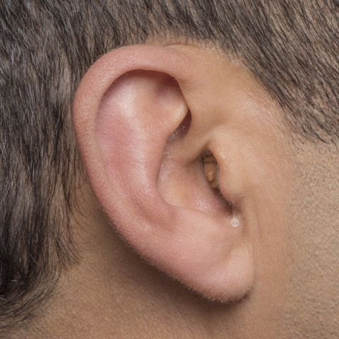 Completely-In-The-Canal (CIC) Hearing Aids